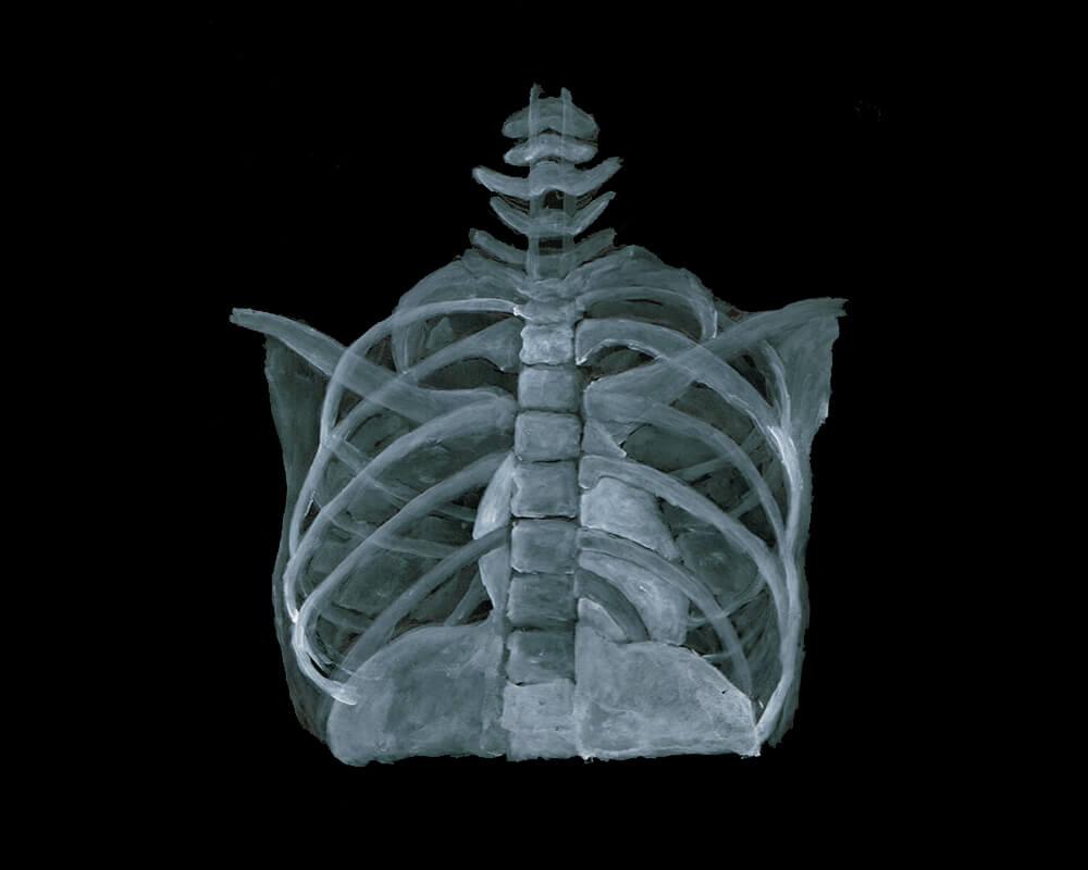 レントゲン イラストレーション 胸部